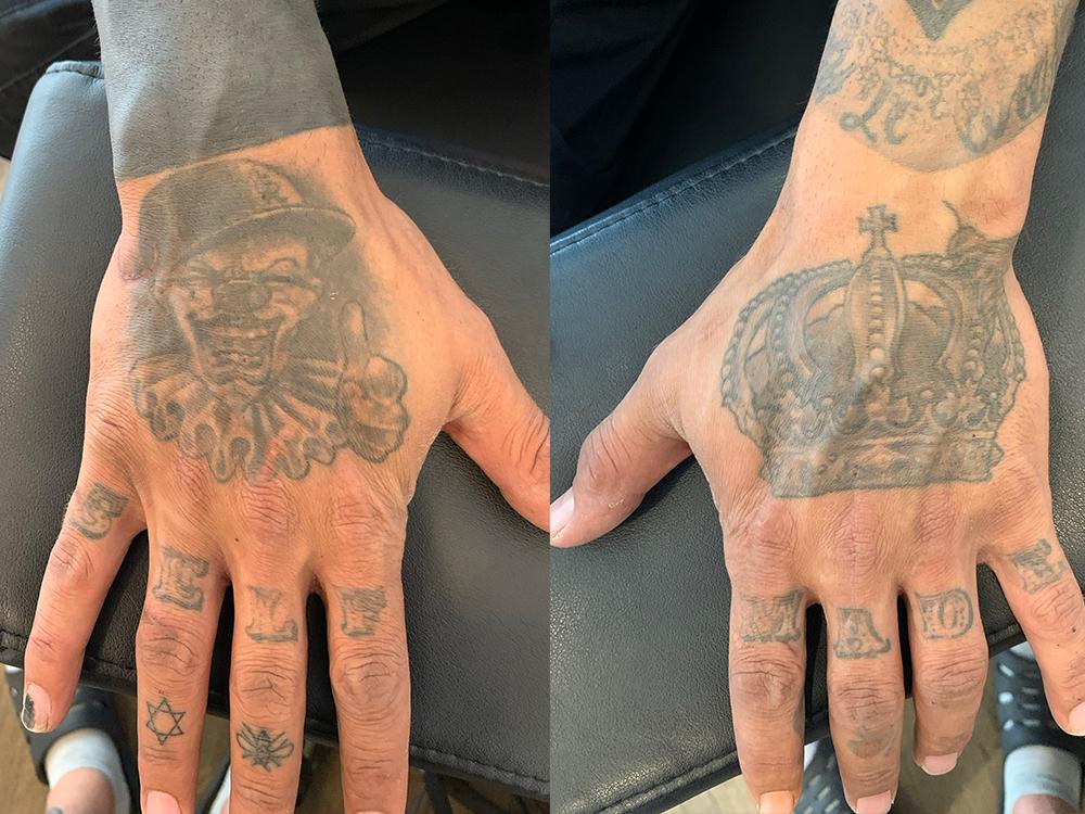 カバーアップ、手の甲タトゥー